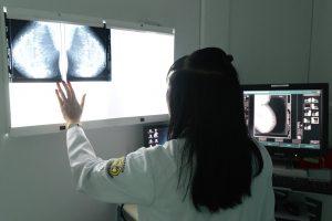 Rio Claro zera a fila de espera por exames de mamografia
